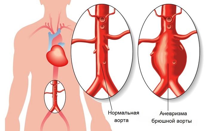 УЗИ висцеральных ветвей брюшной аорты<img src= alt=